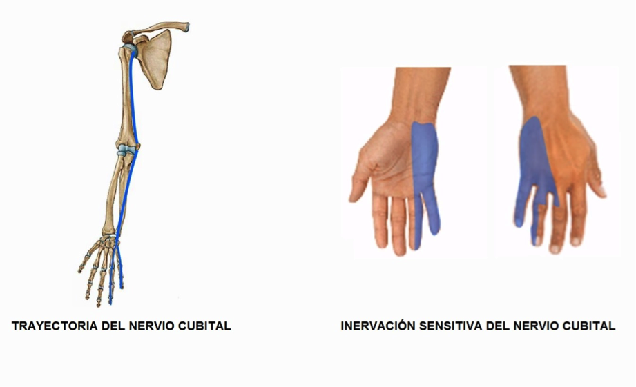 Del el curación daño nervioso brazo en
