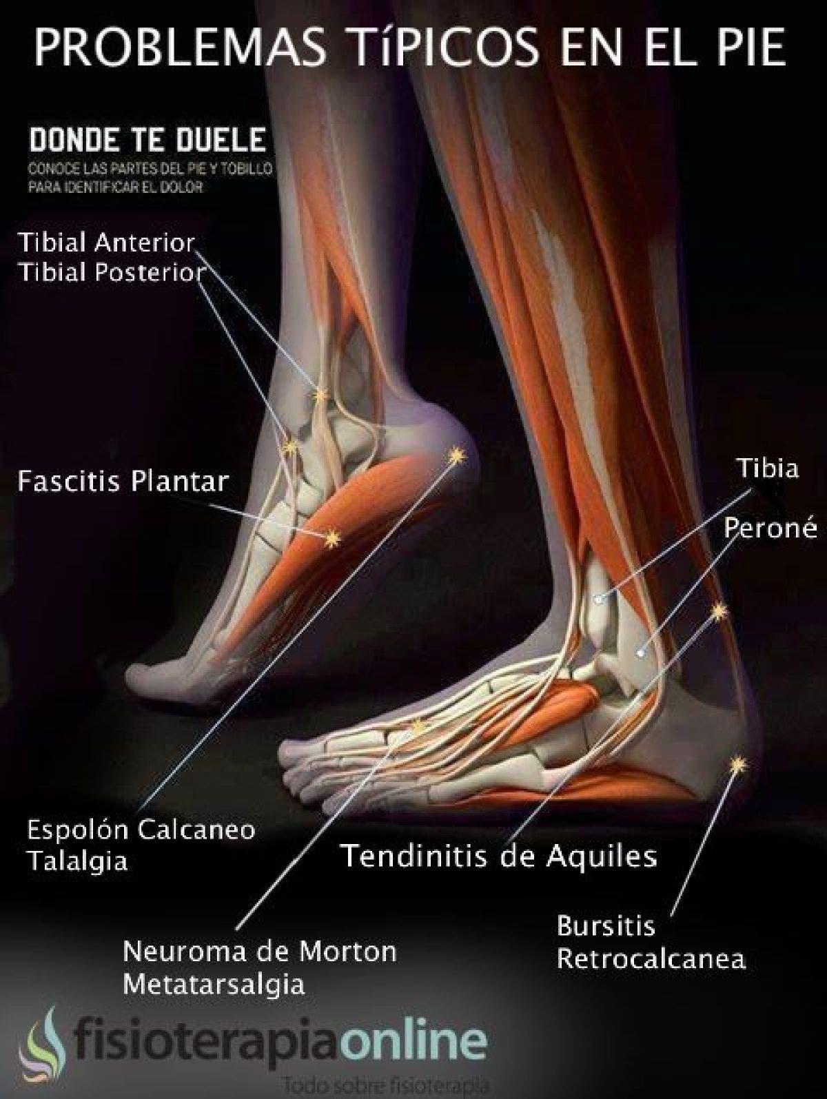 Lesiones y disfunciones del pie, conoce a los principales causantes ...
