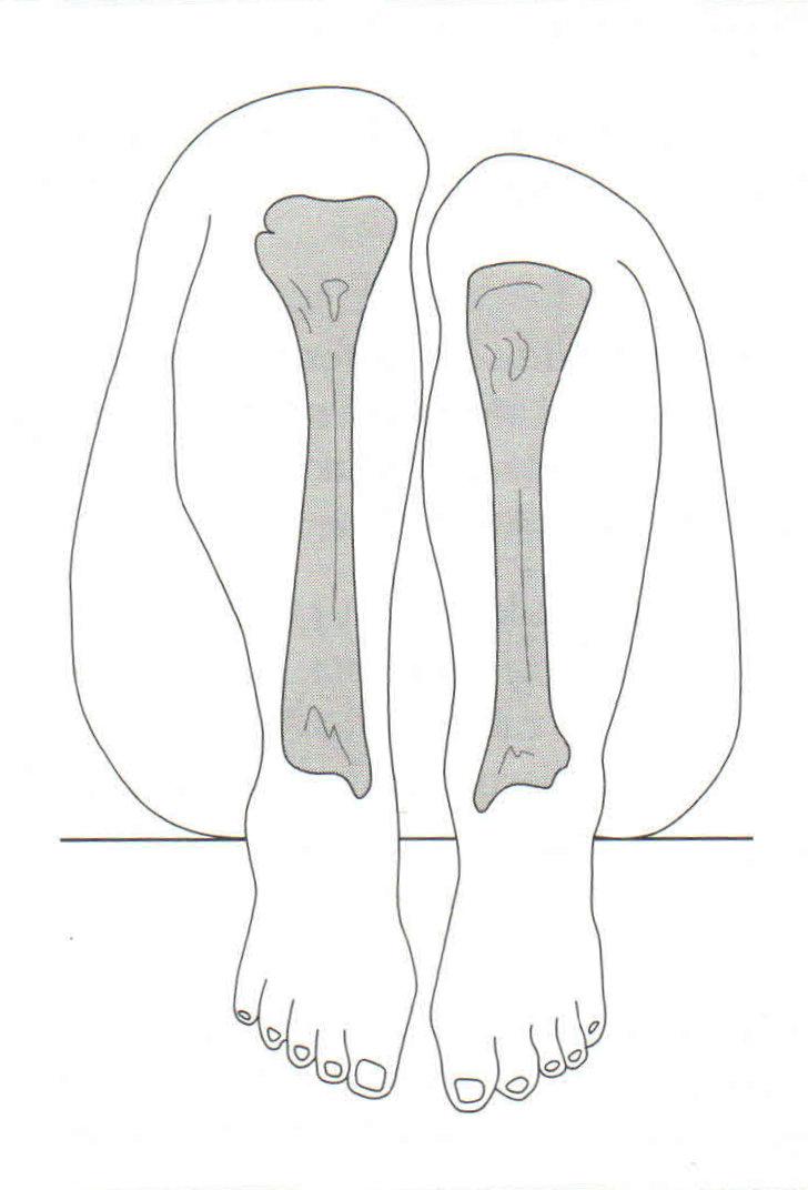 Dismetría de las piernas o extremidades inferiores. Causas, síntomas ...