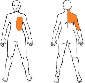 Dolor de espalda media y brazo derecho
