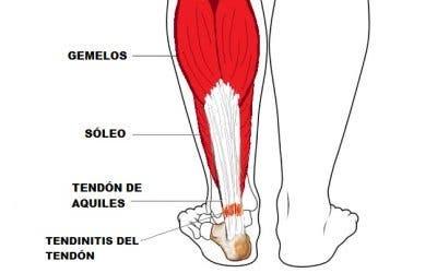 tendinitis de aquiles o aquilea