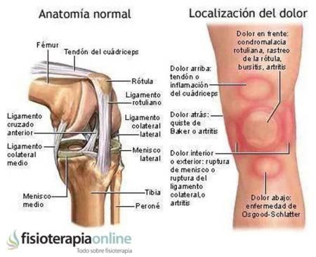dolor en los musculos detras de la rodilla