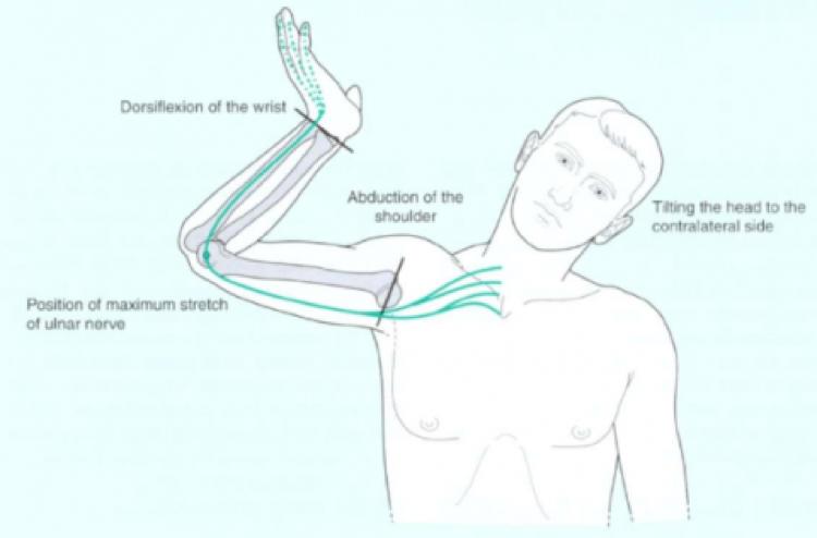 tratamiento pinzamiento nervio cubital