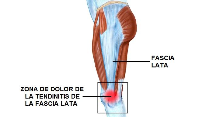 tendinitis parte posterior muslo