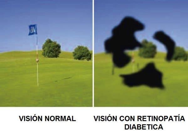 Diabetes y retinipatia diabética