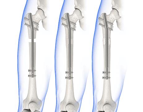 Alargamiento óseo