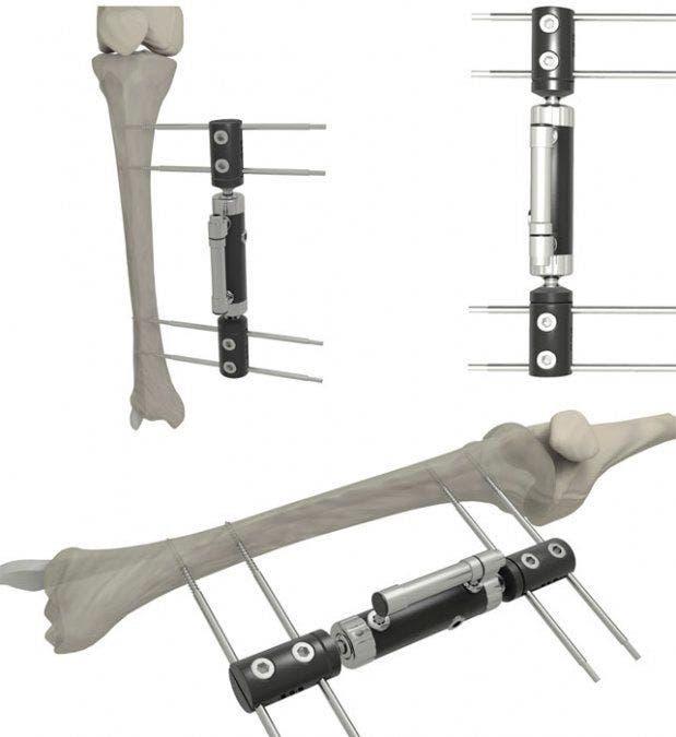 Procedimiento del alargamiento óseo