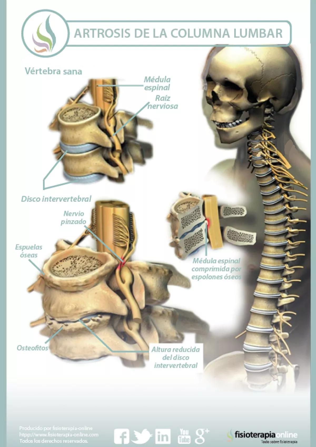 artrosis lumbar