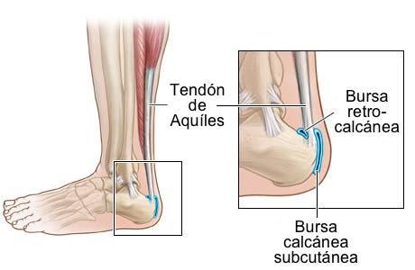 Dolor tendon talon pie