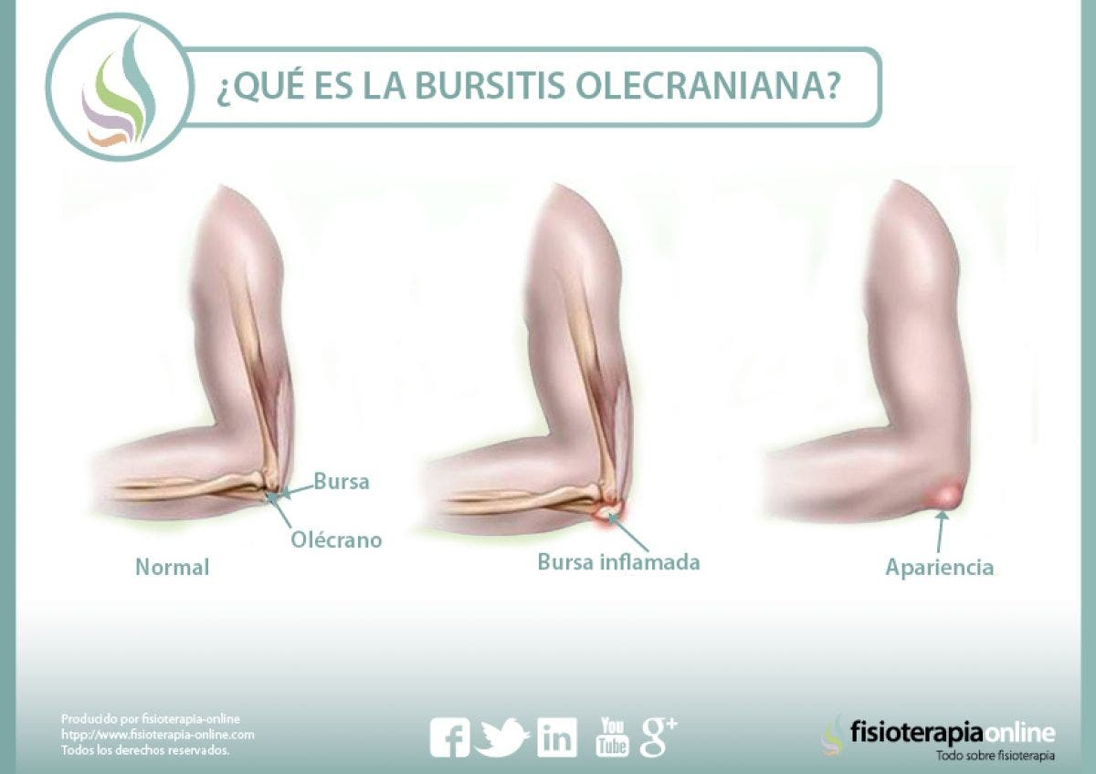 ubicación de la bursitis de codo