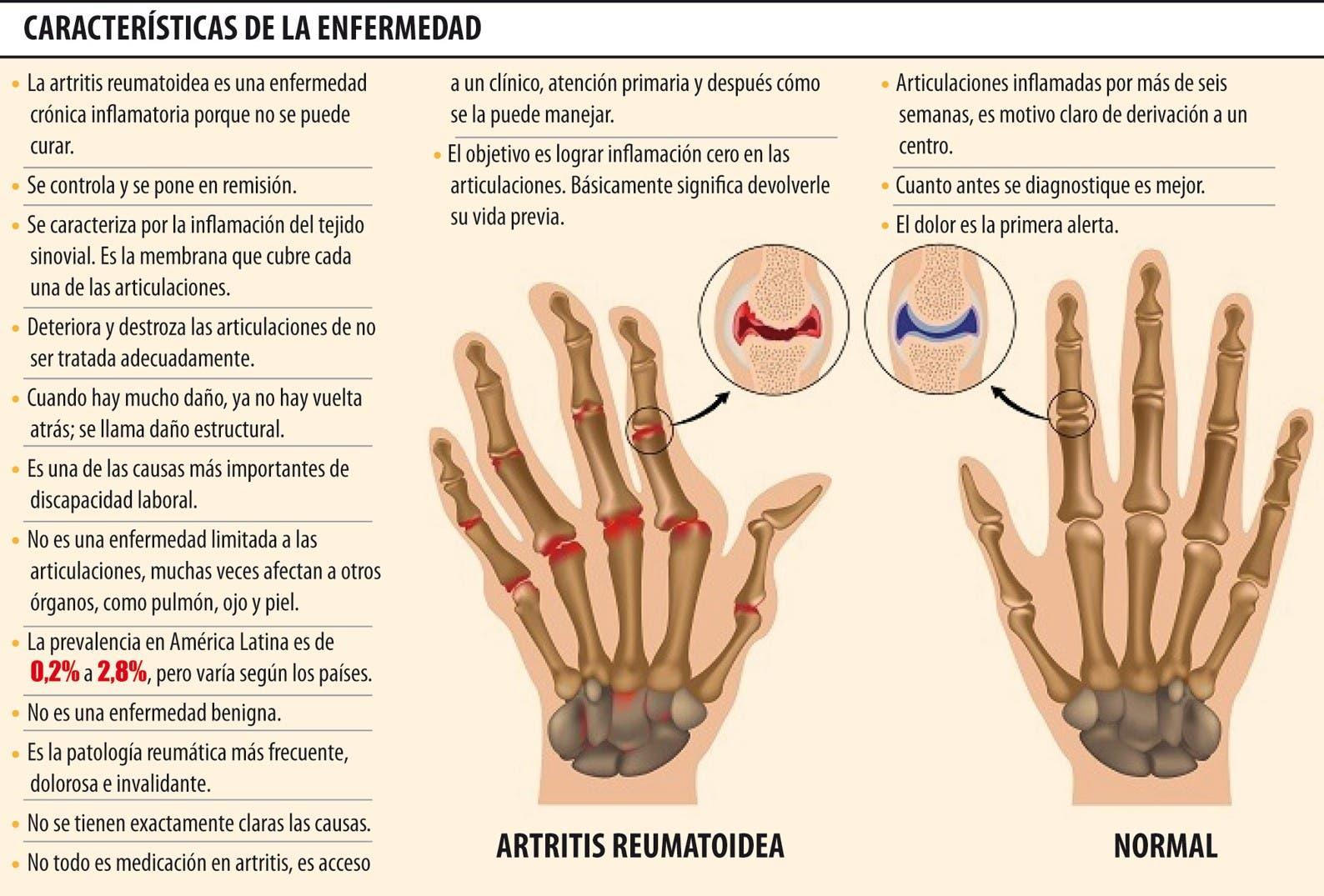 Características de la artritis reumatoide