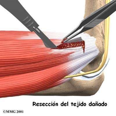 cirugía de epicondilitis