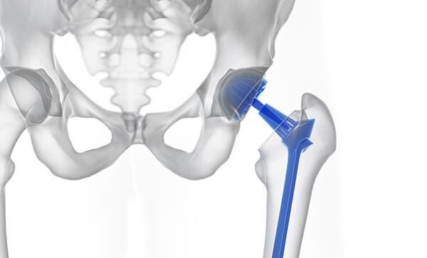 Cirugía de prótesis de cadera