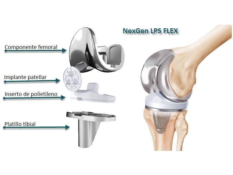 Cirugía de prótesis de rodilla