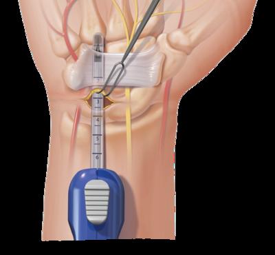 cirugía de síndrome del túnel carpiano