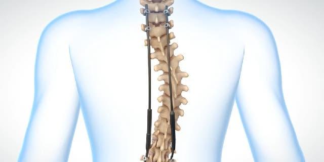 Operación o cirugía para la escoliosis