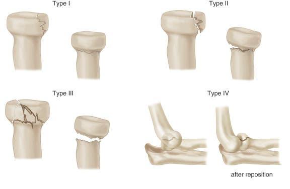 clasificación de las fracturas de cabeza de radio según masson