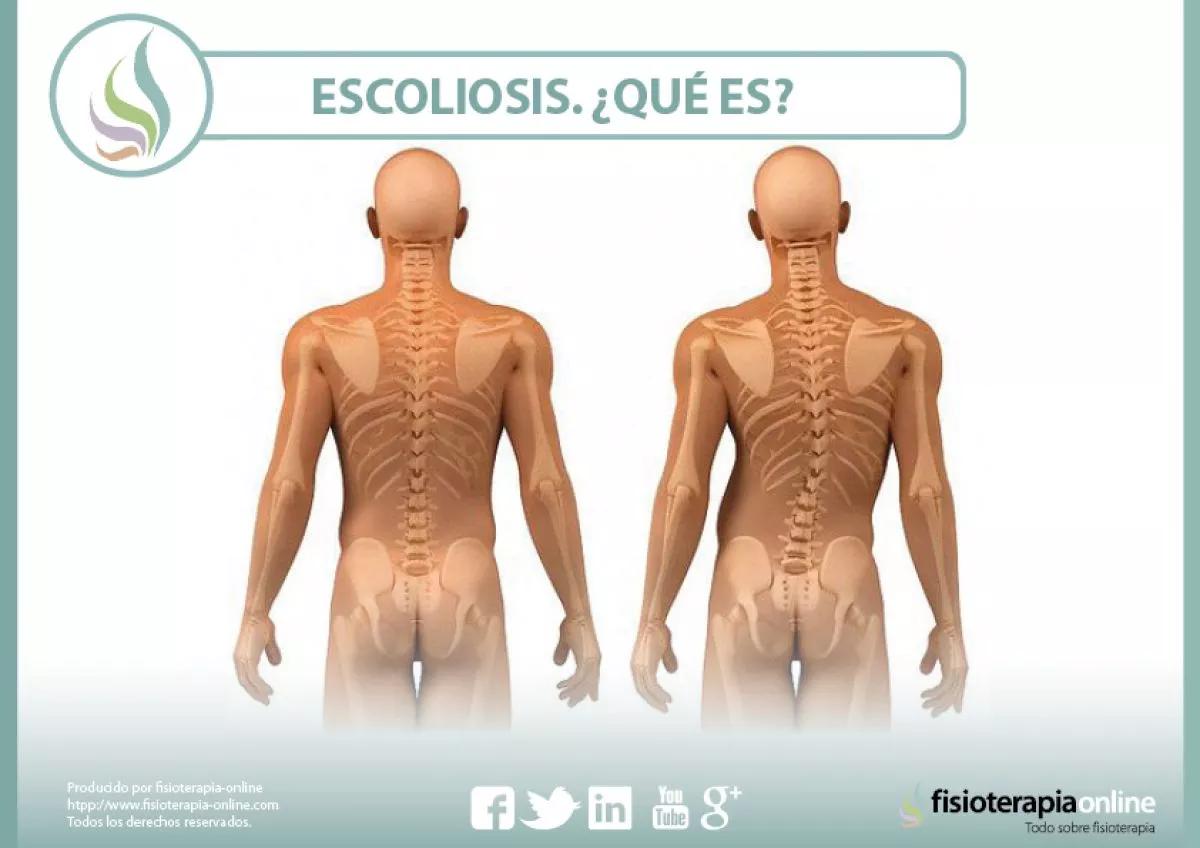 columna sana y con escoliosis