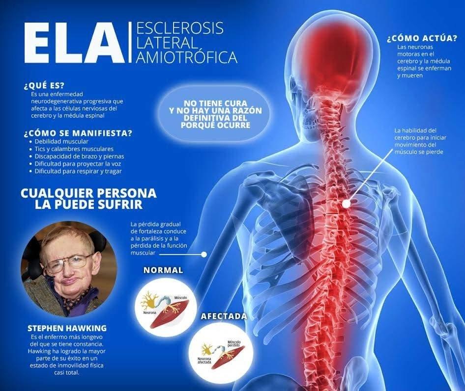 Sintomas de la esclerosis lateral amiotrofica