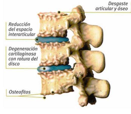 Complicaciones y alteraciones que produce la artrosis cervical