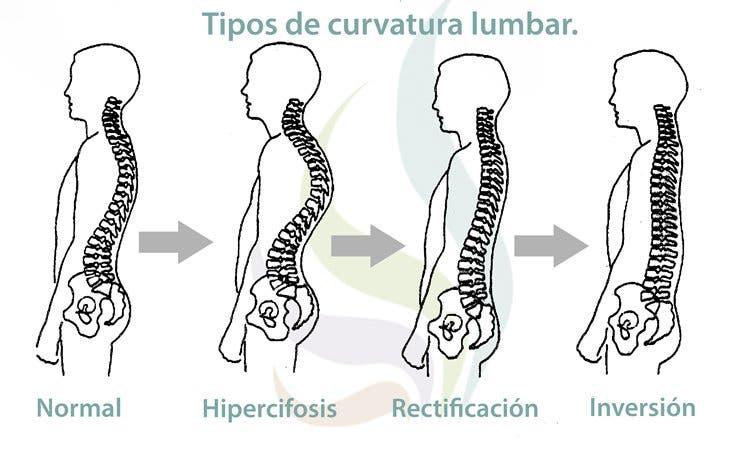 La lordosis o curvatura lumbar. ¿Qué es? Consejos y ejercicios para ...