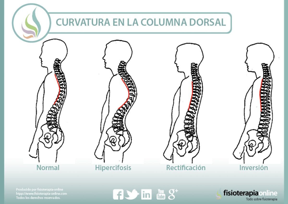 curvaturas en la columna dorsal