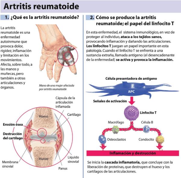 Cómo se desarrolla la artritis reumatoide