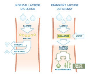 Desarrollo del cólico del lactante