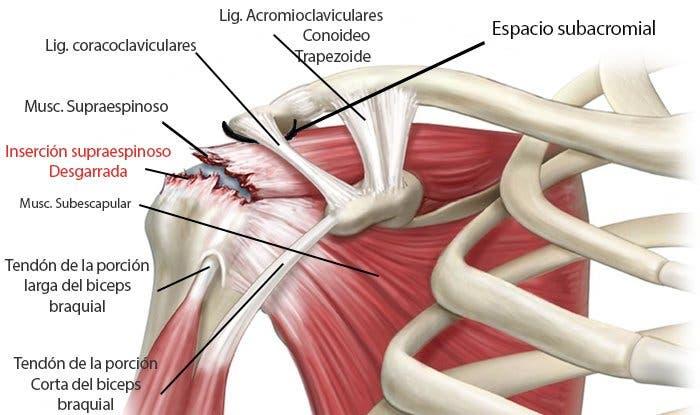 Tendinitis de hombro o supraespinoso infiltraciones | Fisioterapia ...