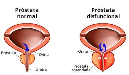 Disfunción de próstata