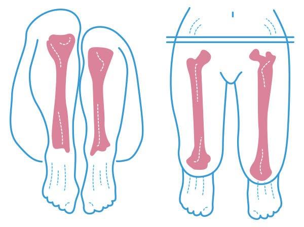 diagnóstico de la dismetría o pierna corta