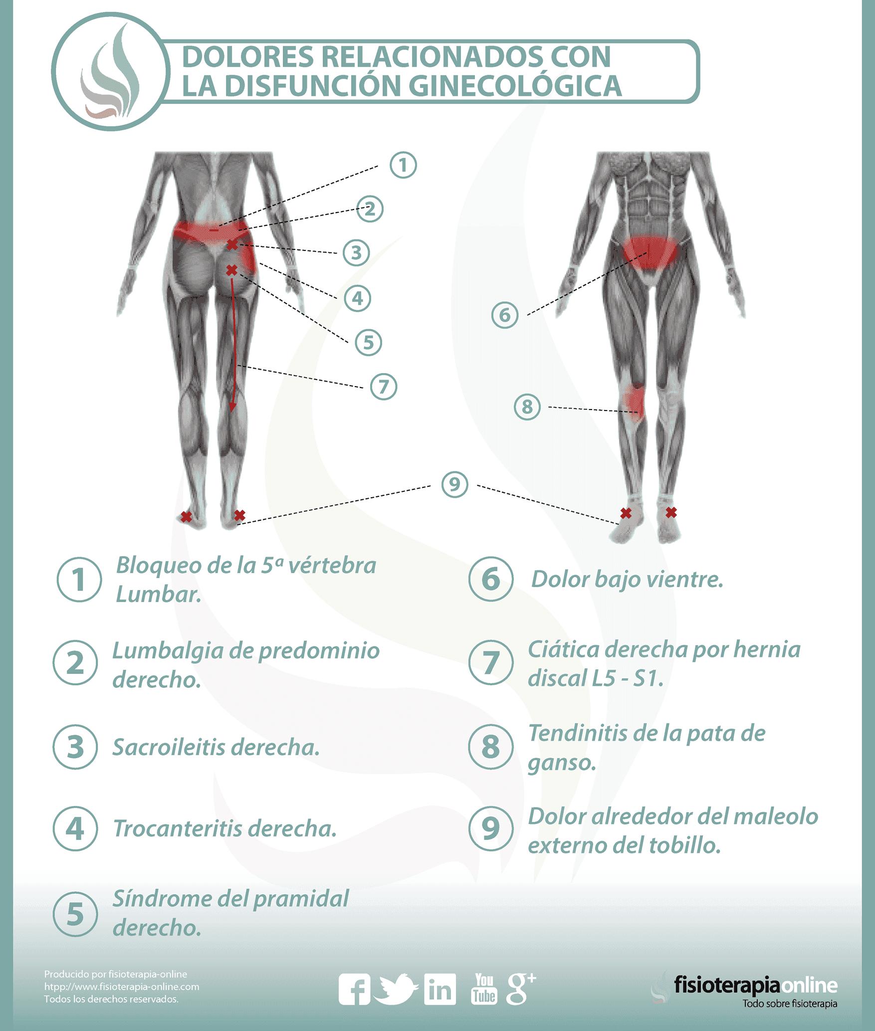dolores relacionados con la disfunción ginecológica
