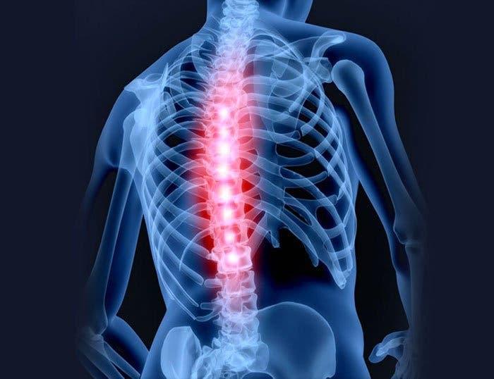 diagnóstico de la dorsalgia