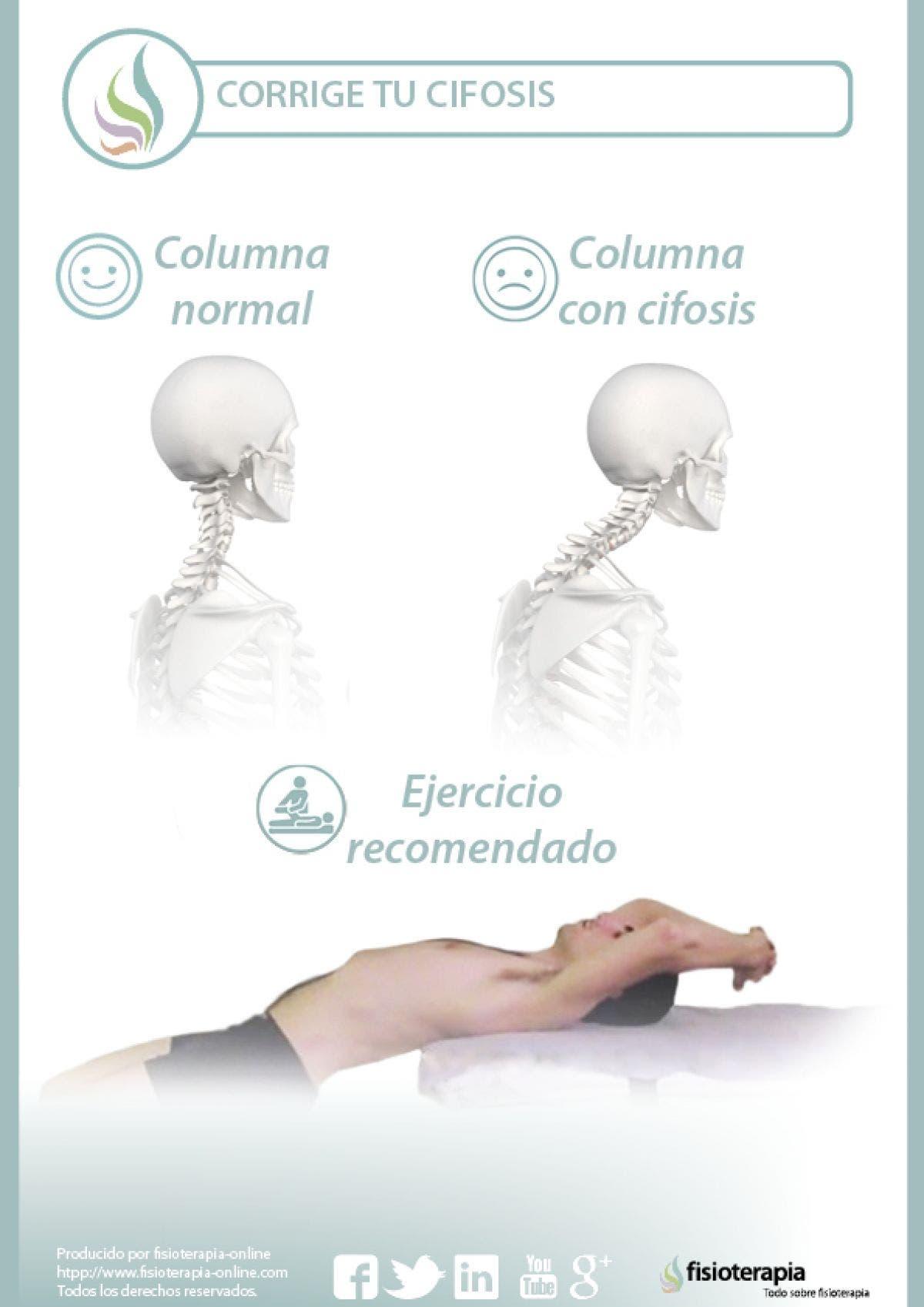 ejercicio para evitar la cifosis dorsal