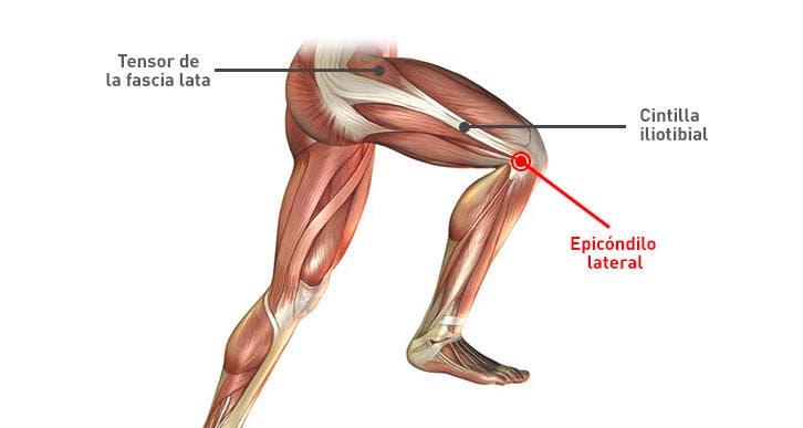 ejercicios para el síndrome de la cintilla iliotibial