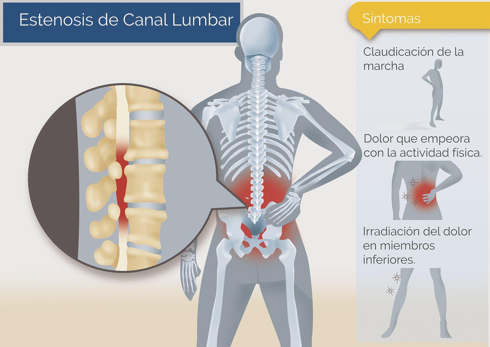 Estenosis del canal lumbar síntomas