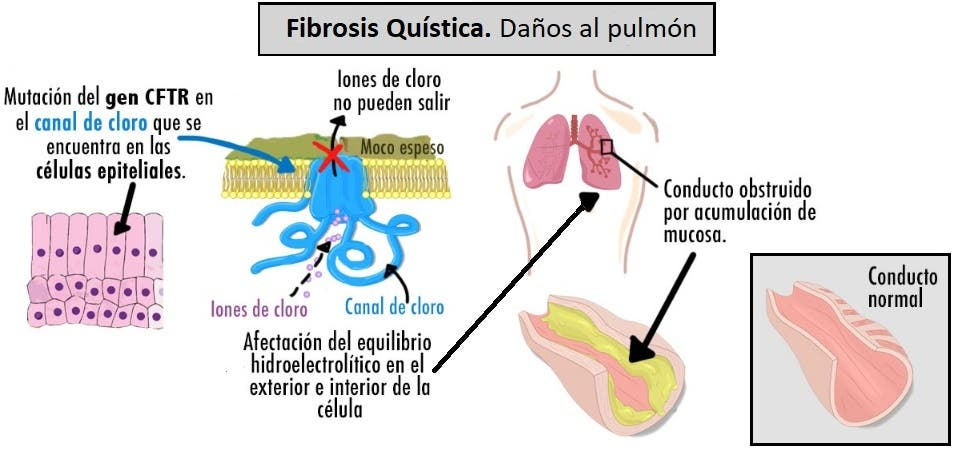 daños en el pulmón por la fibrosis quística