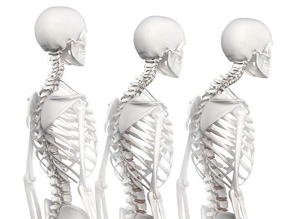 4 ejercicios para corregir la hipercifosis dorsal ...