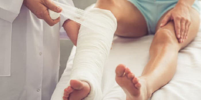 FRACTURA de TIBIA y PERONÉ: Tratamiento desde la fase de INMOVILIZACIÓN