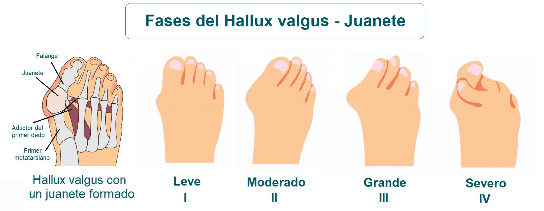 Grados o fases del hallux valgus o juanete