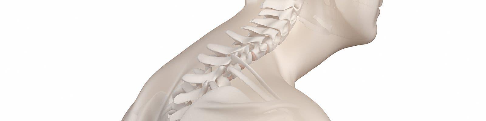 Cifosis dorsal