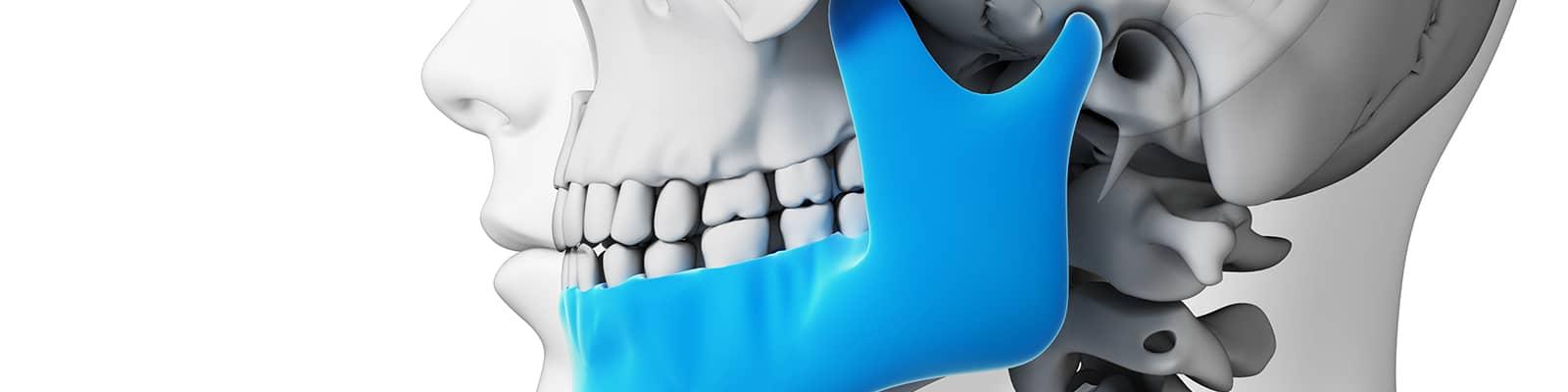 problemas de mandíbula
