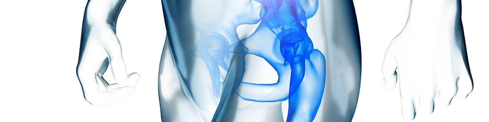 Otras lesiones de pelvis, cadera y pierna