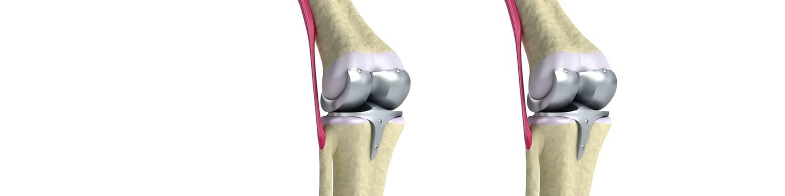 Protesis de rodilla