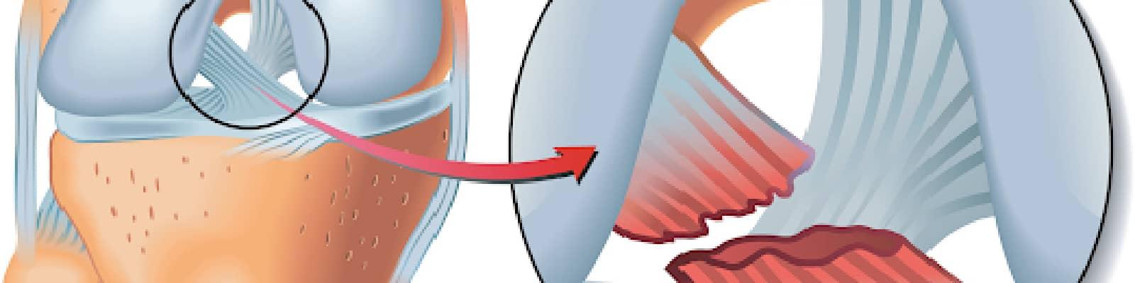 Rotura de ligamento lateral interno