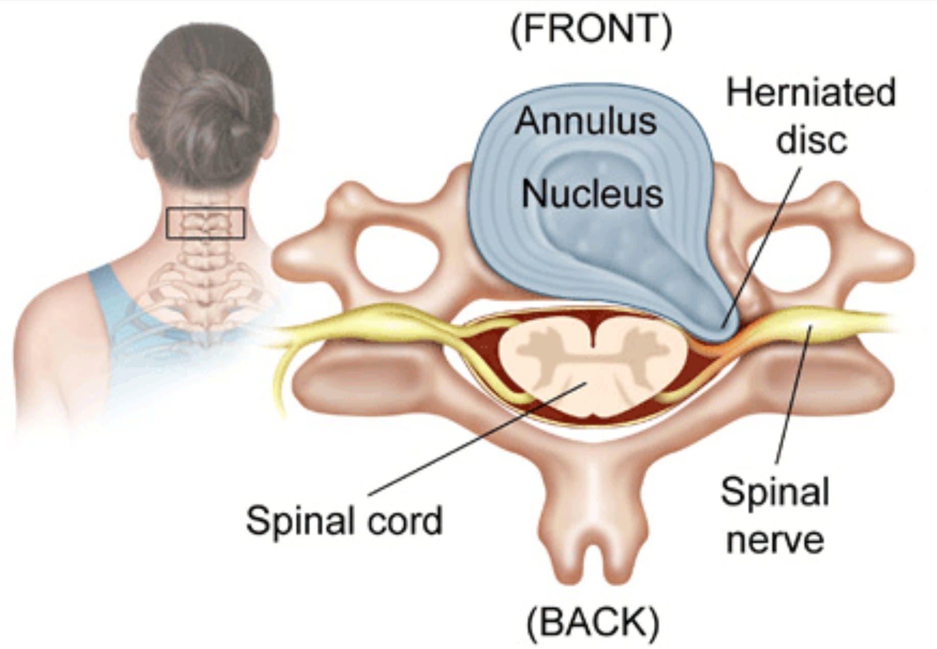 Partes de una hernia discal cervical