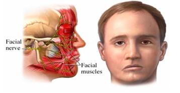 Resultado de imagen para paralisis facial