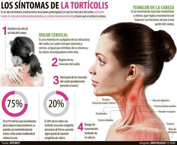 síntomas de la tortícolis