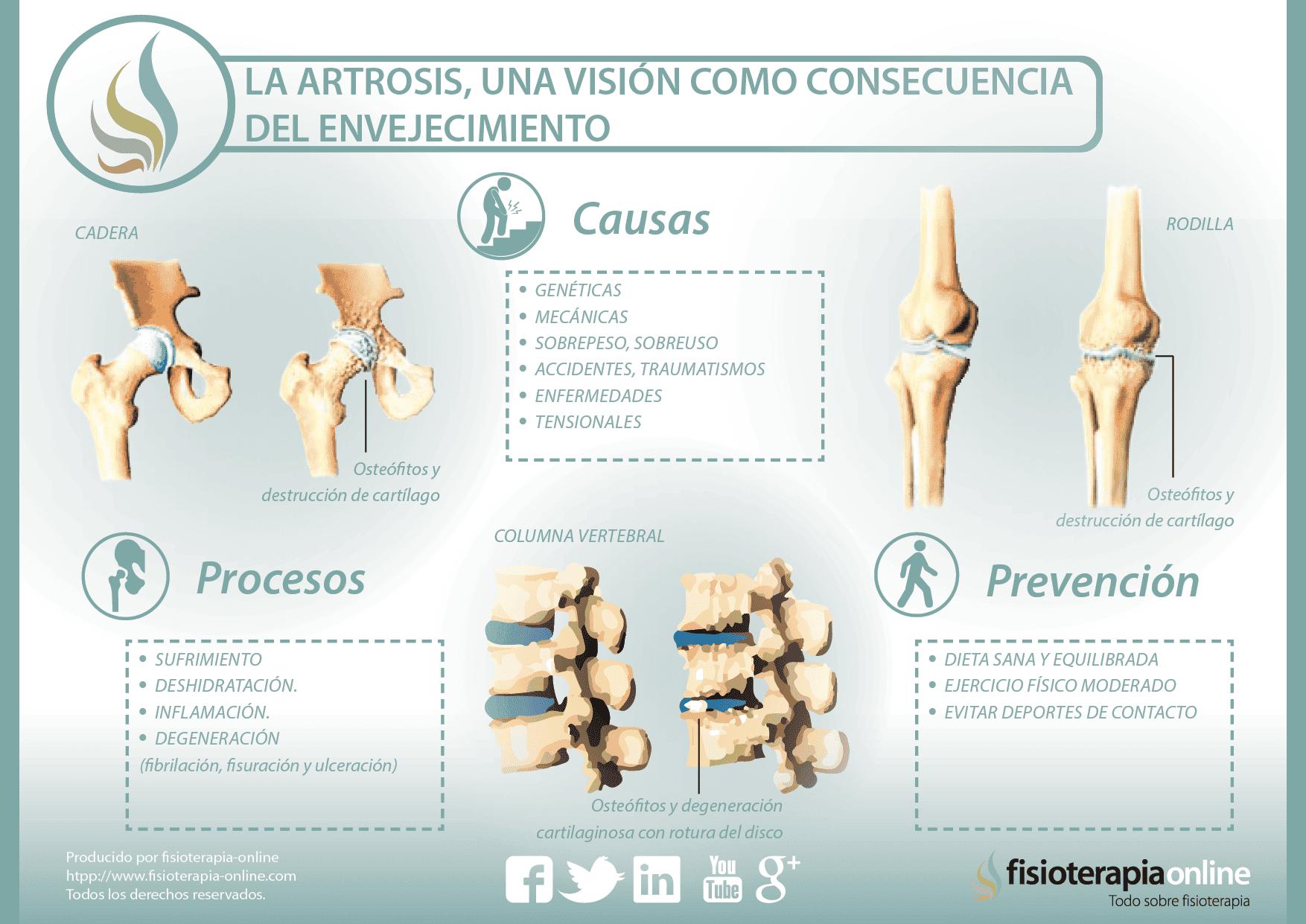 etiologia artrosis de cadera