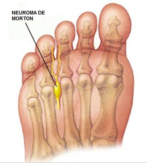 Auto- masaje de los dedos y zona anterior del pie para metatarsalgia ...